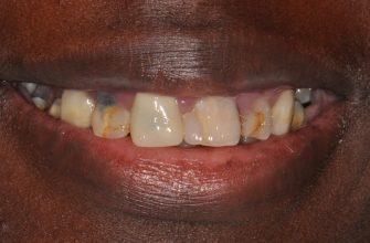 facettes dentaires inconvénients