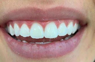 Blanchiment dentaire apres