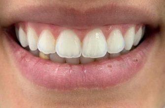 Blanchiment dentaire avant